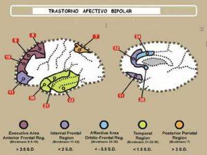cerebro bipolar